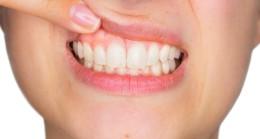 Dişte çok fazla plak birikiminin 6 belirtisi