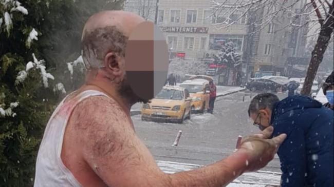 Kayseri'de ailesiyle tartışıp kendini yaktı