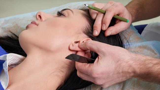 Kepçe kulak nasıl anlaşılır, düzelir mi? Kepçe kulak ameliyatı (Otoplasti) nasıl yapılır?