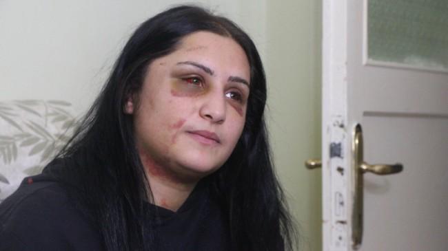Samsun'da eski eşi tarafında darp edilen Emriye: En ağır şekilde cezalandırılsın